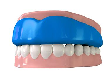 Model of an athletic mouthguard protecting the teeth.
