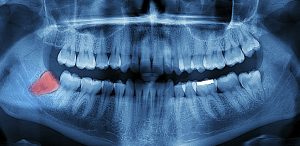 Wisdom teeth removal at Central Dental Associates is carefully considered and planned by our dentists.