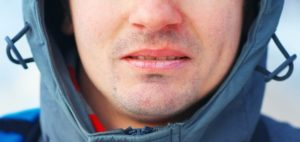 Man wearing a coat with chapped lips